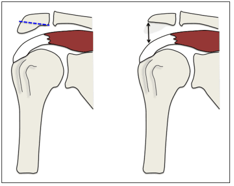 Acromioplastie