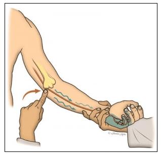 nerf-cubital