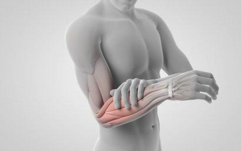 Syndrome des epicondyliens